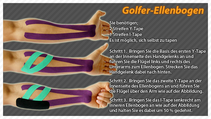 ares kinesiology taping technique on golf elbow on