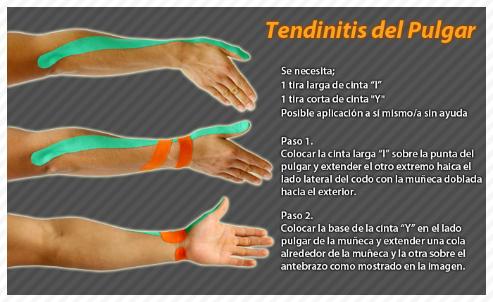 ares kinesiology taping technique on thumb tendinitis